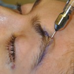 Brow Fat Injections Dr Barry Eppley Indianapolis
