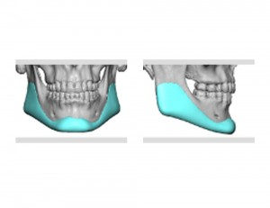 Custom Jawline Implant design Dr Barry Eppley Indianapolis