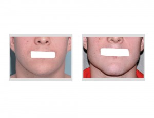 Custom Jawline Implant result front view