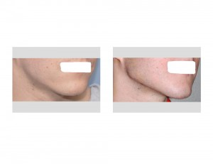 Custom Jawline Implant result oblique view
