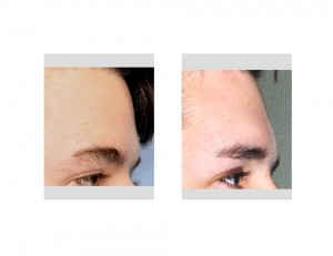 Endoscopic Brow Bone Implant result side view Dr Barry Eppley Indianapolis