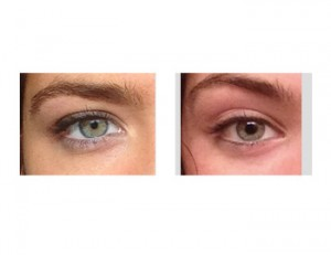 Eyebrow Arch Fat Injections Dr Barry Eppley Indianapolis