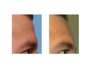 Fat Injection to Brow Bone Break Dr Barry Eppley Indianapolis
