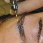 Fat Injections Brows Dr Barry Eppley Indianapolis