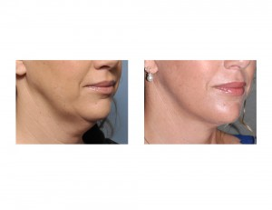 Limited Facelift result oblique view Dr Barry Eppley Indianapolis