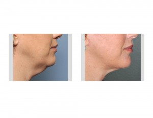 Limited Facelift result side view Dr Barry Eppley Indianapolis