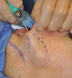 Perioral Mound Liposuction Dr Barry Eppley Indianapolis