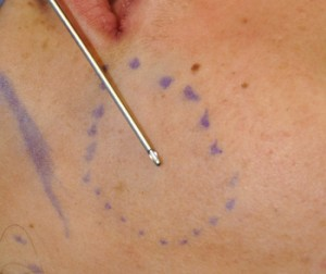 Perioral Mound Liposuction cannula Dr Barry Eppley Indianapolis