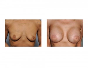 Stacey Norman Breast Augmentation results front view