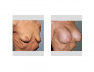 Stacey Norman Breast Augmentation results oblique view