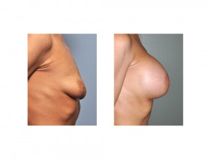 Stacey Norman Breast Augmentation results side view