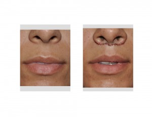 Subnasal Lip Lift immediate result front view
