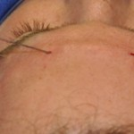 fat injections to brow bone dr barry eppley indianapolis