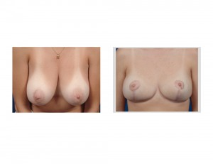 Breast Reduction early result front view Dr Barry Eppley Indianapolis