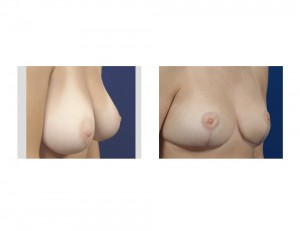 Breast Reduction early result oblique view Dr Barry Eppley Indianapolis