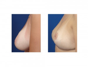 Breast Reduction early result side view Dr Barry Eppley Indianapolis