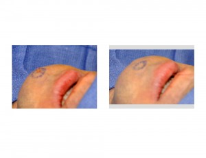 Chin Dimple Surgery Technique Dr Barry Eppley Indianapolis