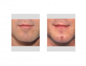 Chin Dimple Surgery result front view Dr Barry Eppley Indianapolis