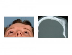 Forehead Osteoma Dr Barry Eppley Indianapolis