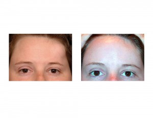Forehead Osteoma Reconstruction result front view Dr Barry Eppley Indianapolis