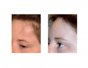 Forehead Osteoma Reconstruction result left oblique view Dr Barry Eppley Indianapolis