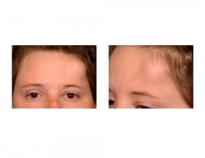 Forehead Osteoma closeup Dr Barry Eppley Indianapolis