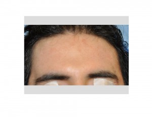 Forehead Widening Implant result 2 Dr Barry Eppley Indianapolis