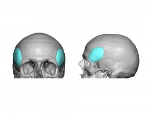 High Temporal; Implant Design for Forehead Widening Dr Barry Eppley Indianapolis