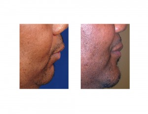 Obstructive Sleep Apnea Sliding Genioplasty result sidew view Dr Barry Eppley Indianapolis