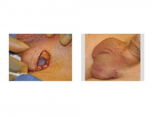 Testicular Implant Surgery Indianapolis Dr Barry Eppley
