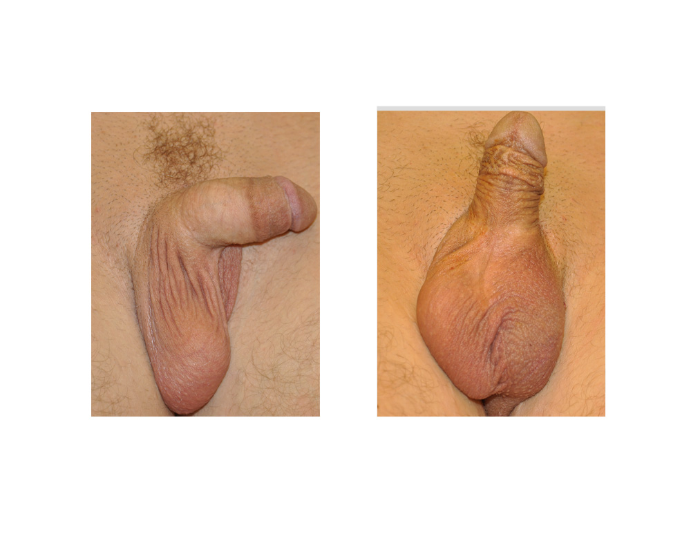 Case Study Solid Silicone Testicle Implants - Explore -6226