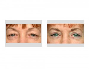 Upper and Lower Blepharoplasty result front view Dr Barry Eppley Indianapolis