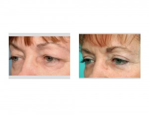Upper and Lower Blepharoplasty result oblique view Dr Barry Eppley Indianapolis