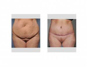 Urinary Incontinence and Tummy Tuck Surgery Dr Barry Eppley Inianapolis