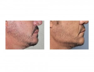 Vertical Lengthening Jaw Angle Implants result side view Dr Barry Eppley Indianapolis