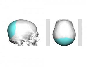 Custom Occipital Imp[lant Design Dr Barry Eppley Indianapolis