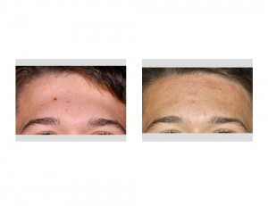 Forehead Recontouring result front view