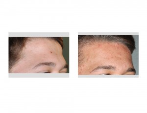 Forehead Recontouring result oblique view