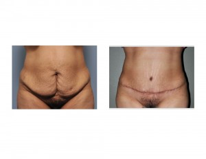 Hispanic Tummy Tuck result front view