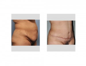 Hispanic Tummy Tuck result oblique view
