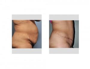 Hispanic Tummy Tuck result side view