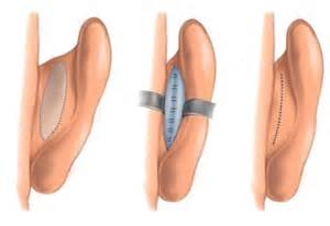 Otoplasty for protruding ears Dr Barry Eppley Indianapolis
