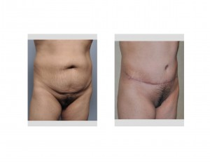 Pubic Lift in a Tummy Tuck oblique view Dr Barry Eppley Indianapolis