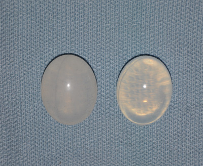 Silicone-Testicle-Implants-Dr-Barry-Eppl