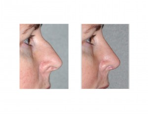 Airway Preserving Rhinoplasty Dr Barry Eppley side view