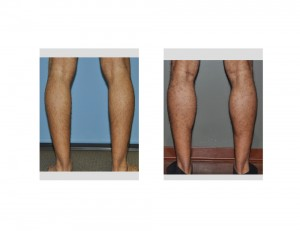 Calf Implants result back view Dr Barry Eppley Indianapolis