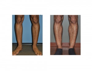 Calf Implants result front view Dr Barry Eppley Indianapolis
