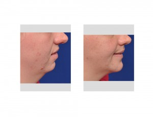 Orthognathic Surgery for Obstructive Sleep Apnea Dr Barry Eppley Indianapolis side view