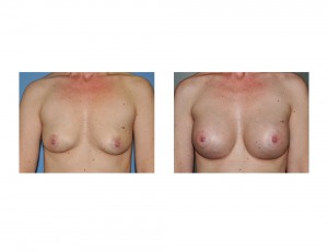 Textured Shaped Silicone Breast Augmentation result front view Dr Barry Eppley Indianapolis