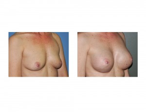 Textured Shaped Silicone Breast Augmentation result oblique view Dr Barry Eppley Indianapolis